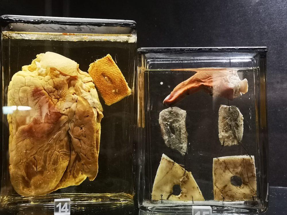 lappeteppet-teknisk-museum-hull-i-hjertet-skudd-i-hodet